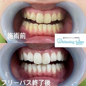 【歯磨き粉の使用期限】