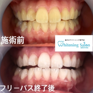 【歯の白さ、色が人によって違うのはなぜ??】