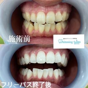 【歯の役割とは❔】