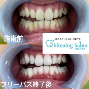 【虫歯に効果的なフッ素】