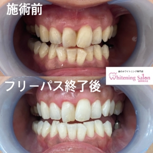【歯の痛み】