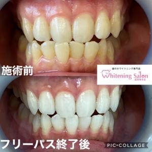【歯科医院とセルフホワイトニンングの違い】
