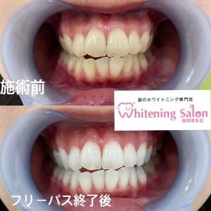 【歯茎の腫れ】