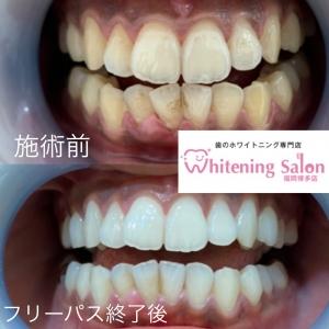 【歯の病】