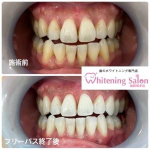 【歯の色について】