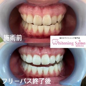 【歯のために良い生活習慣】