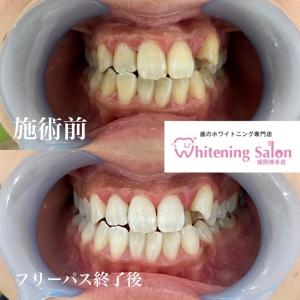【歯が欠けた時の応急処置】