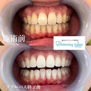 【歯の働きとは?】