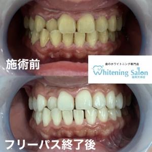 【歯の筋肉と構造について】
