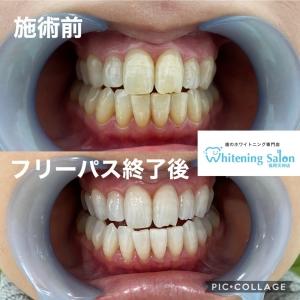 【歯磨きすれば黄ばまない?】