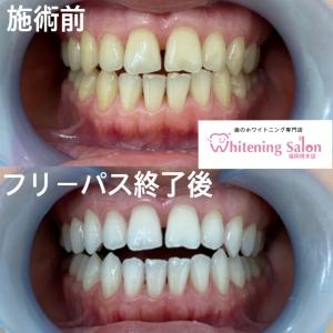 【歯痛の原因について】