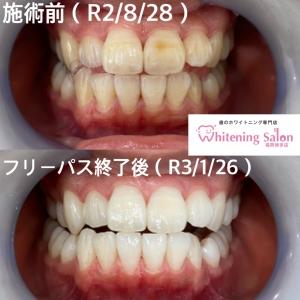 【歯石とは?】