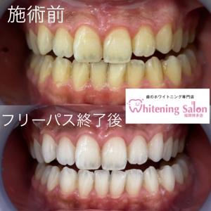 【歯垢と歯石の違いとは】