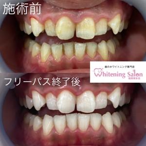 【正しい歯磨きの仕方】