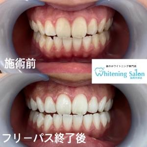 【歯茎からの出血を抑える簡単な3つのケア】