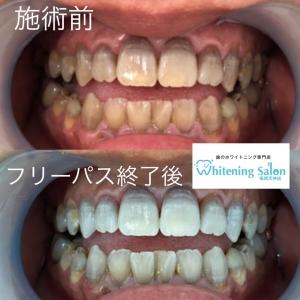 【歯がグレーっぽくてお悩みの方必見!】