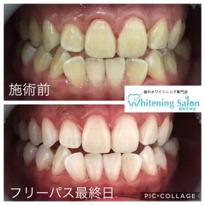 【歯石取りの頻度とは?】