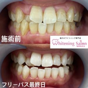 【歯の役割と仕組み】