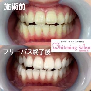 【歯の黄ばみの種類や原因は?】