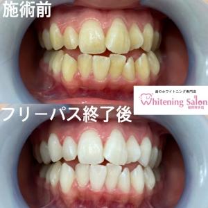 【歯石除去の頻度】