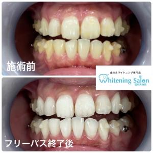 【当店インスタグラムにて歯の比較写真公開中!】
