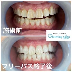 【歯の健康!Q&A】