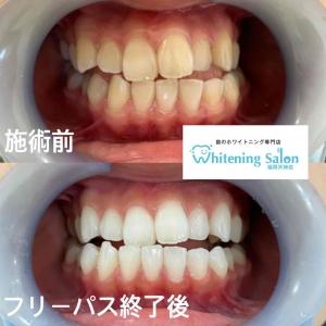 【夜の歯磨きの重要さ!】