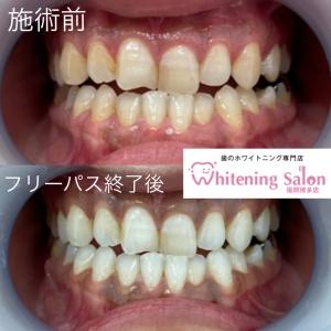 【歯の健康!Q&Aパート2】