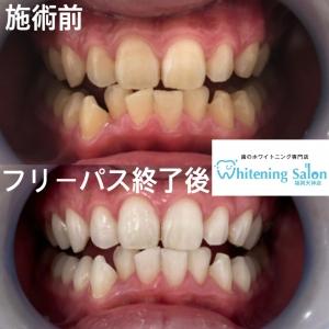 【虫歯による口臭】