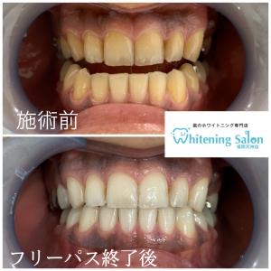 【歯痛について】
