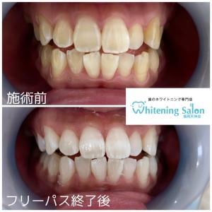 【歯が長くなった!?】