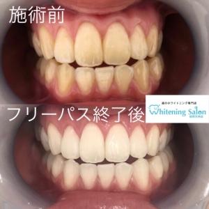 【歯の隙間ができる生活習慣】