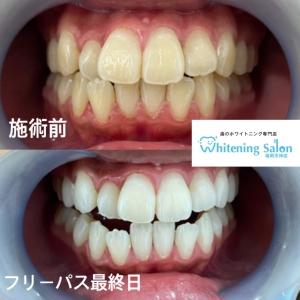 【歯が原因ではない痛みとは??】