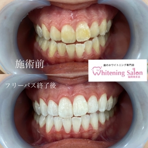 【歯を失ってしまうことのリスク】