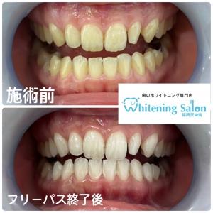 【歯の黄ばみ状態を確認する方法】