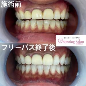 【加齢による歯の色の変化】
