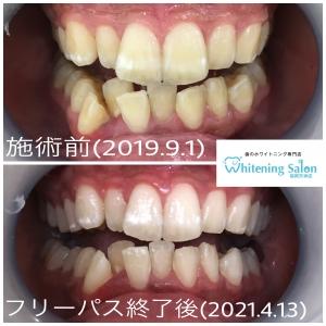 【歯間ケアの種類】
