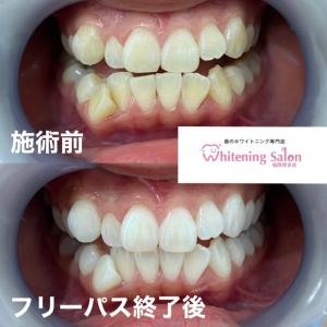 【大人の歯の本来の本数】