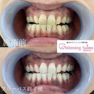 【大人の矯正歯科治療!】