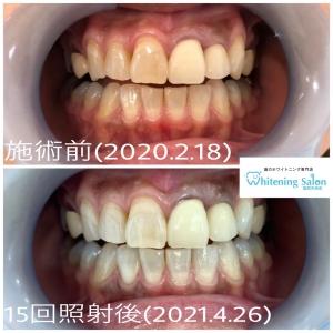 【歯を失うと全身の健康が損なわれる】