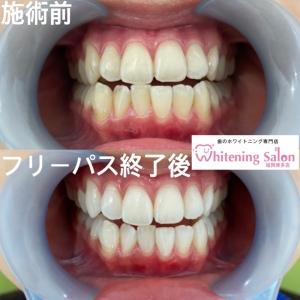 【歯磨きの後のうがい】