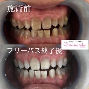 【歯が茶色になる4つの原因】