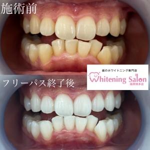 【歯磨き粉の選び方】