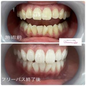 【歯茎の健康な印とは??】