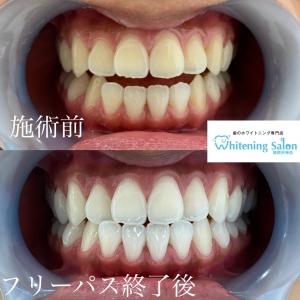 【妊娠時に見られやすい歯やお口の問題】