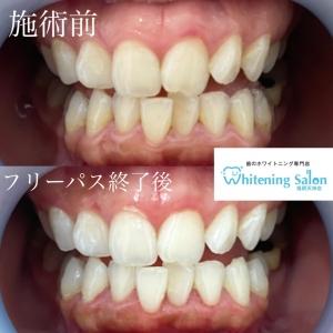 【どの歯が痛いか言い当てるのは難しい?】