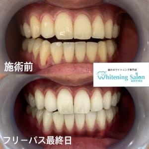 【お口の予防〜キシリトールについて〜】