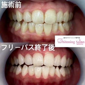 【虫歯を防ぐフッ素の働き!】