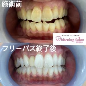 【歯茎が赤黒いと危険?!】