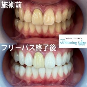 【人工歯の種類・値段について!】